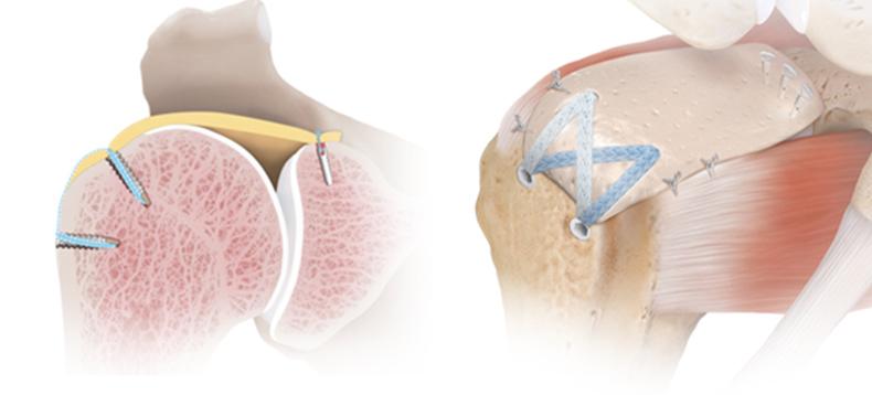 procedure left image